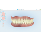 Scanner intra-oral iTero